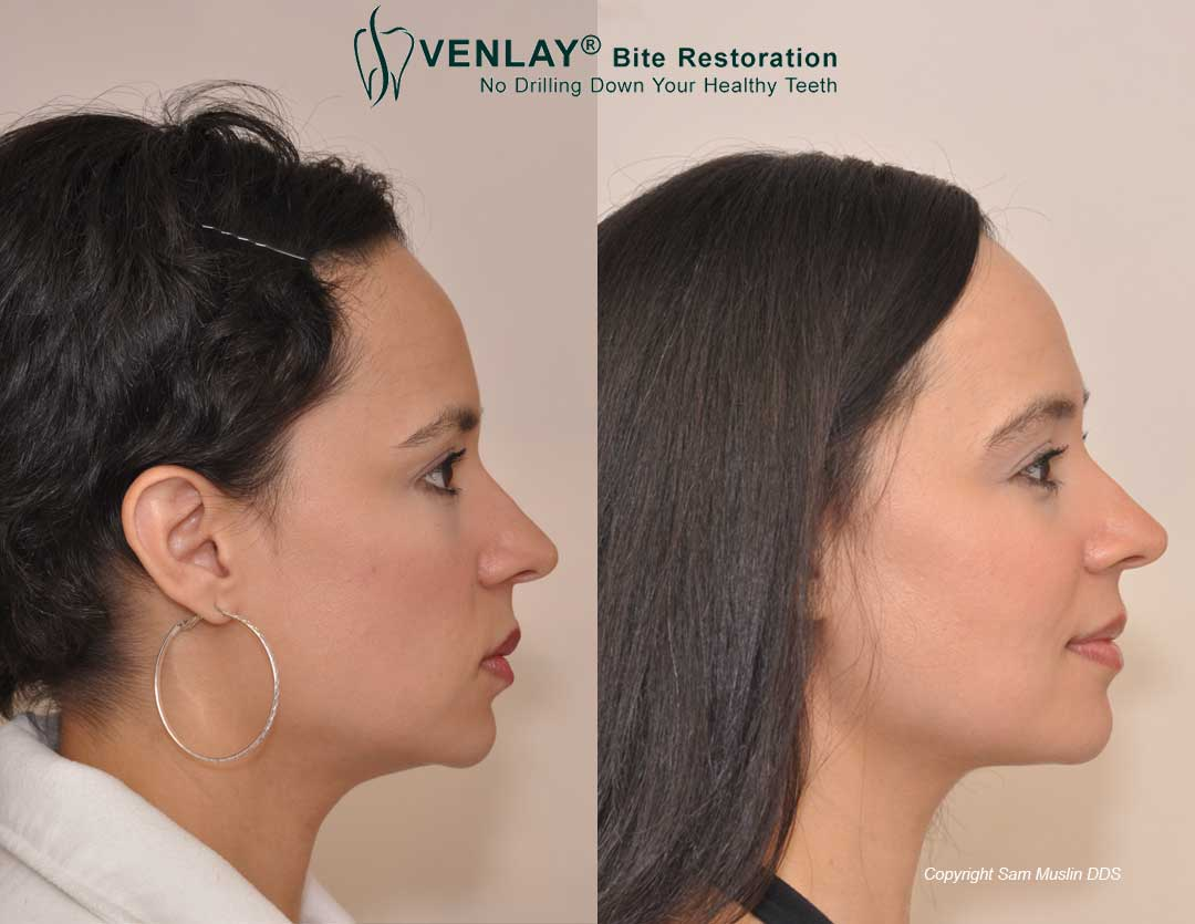Patient showing a corrected overbite without surgery or braces